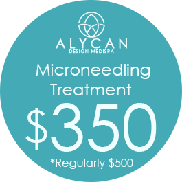 Microneedling Treatment $350, Regularly $500